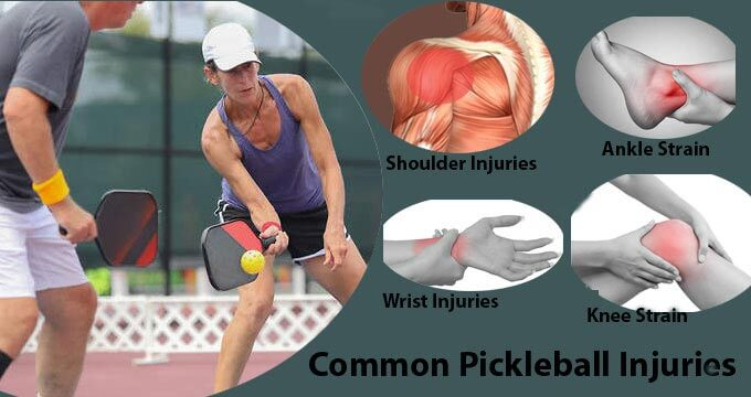 Common Pickleball Injuries